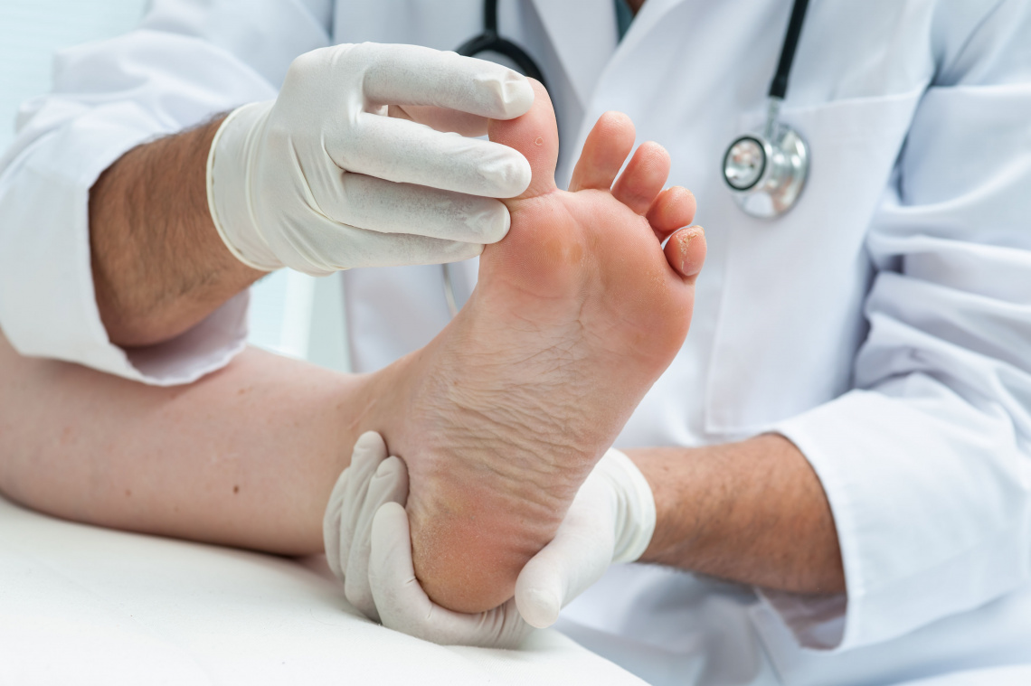 Грибок поражает преимущественно пальцы ног, кожные складки, подошву